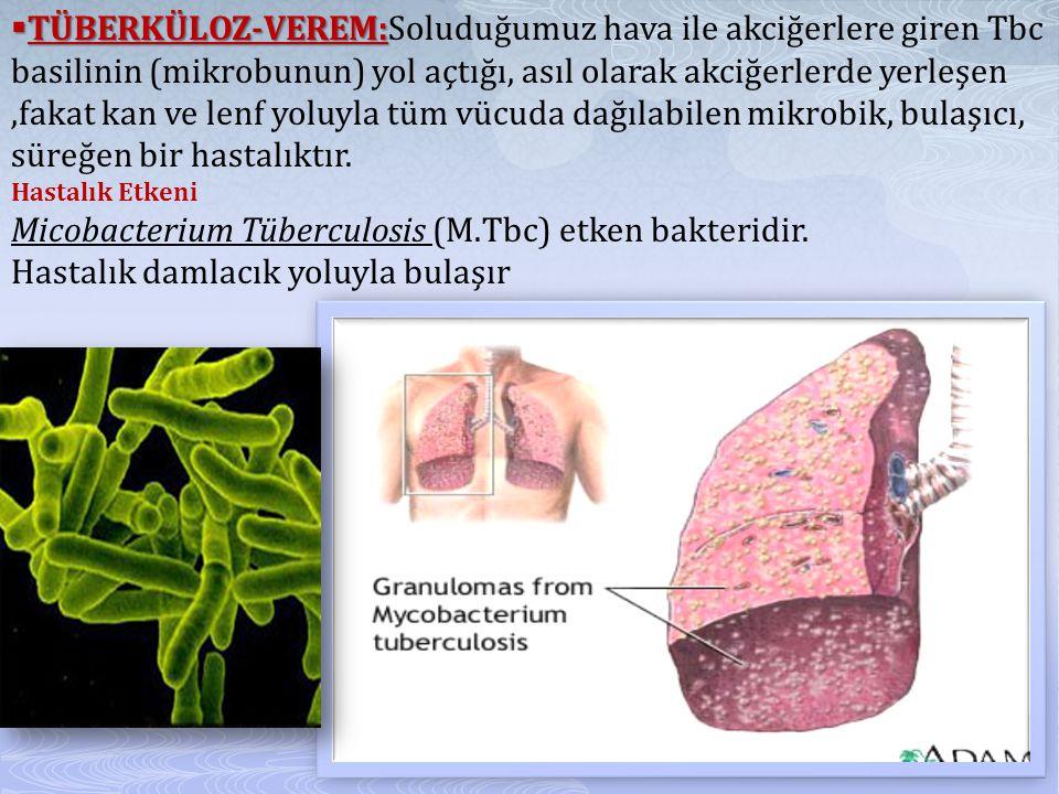 Micobacterium Tüberculosis (M.Tbc) etken bakteridir.