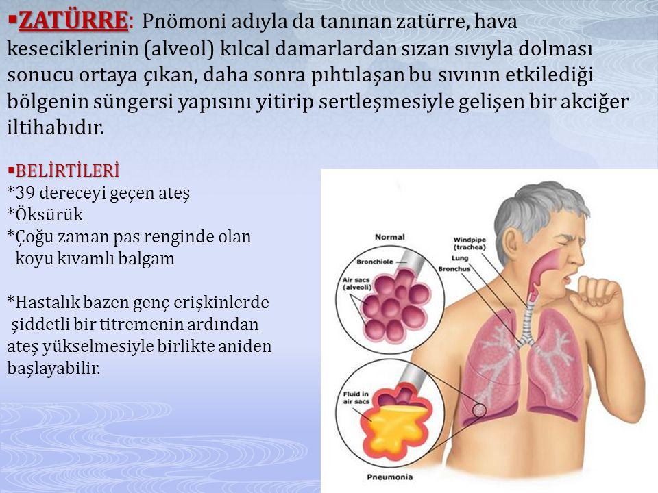 ZATÜRRE: Pnömoni adıyla da tanınan zatürre, hava keseciklerinin (alveol) kılcal damarlardan sızan sıvıyla dolması sonucu ortaya çıkan, daha sonra pıhtılaşan bu sıvının etkilediği bölgenin süngersi yapısını yitirip sertleşmesiyle gelişen bir akciğer iltihabıdır.