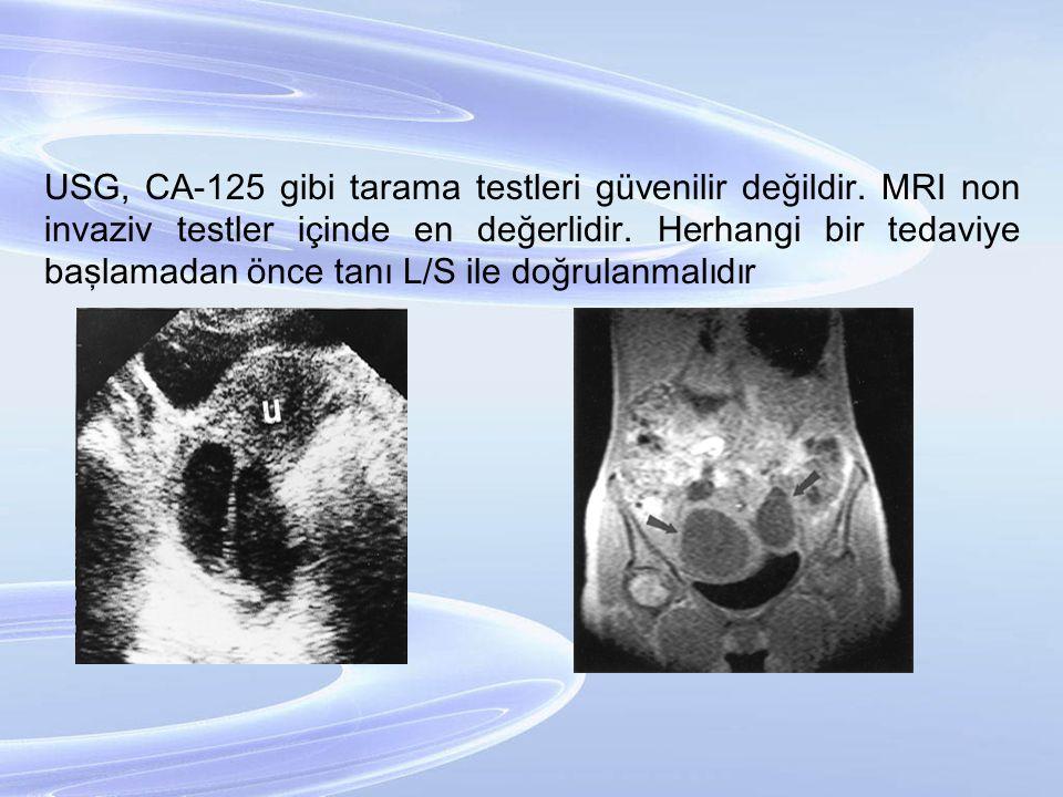 USG, CA-125 gibi tarama testleri güvenilir değildir