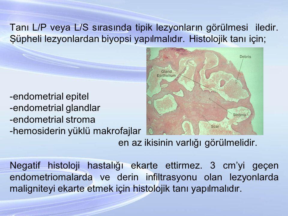Tanı L/P veya L/S sırasında tipik lezyonların görülmesi iledir
