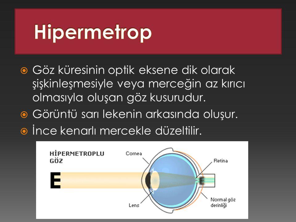 Hipermetrop Göz küresinin optik eksene dik olarak şişkinleşmesiyle veya merceğin az kırıcı olmasıyla oluşan göz kusurudur.