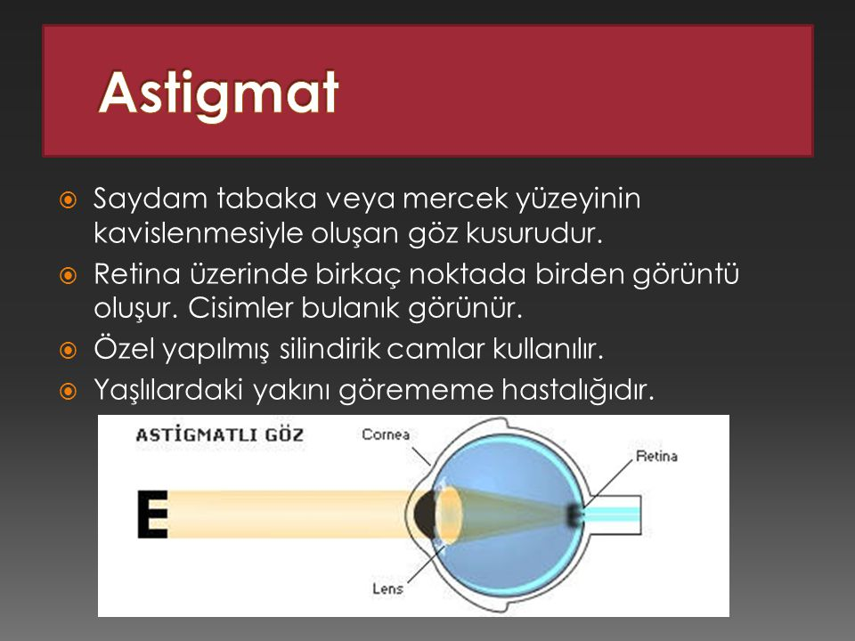 Astigmat Saydam tabaka veya mercek yüzeyinin kavislenmesiyle oluşan göz kusurudur.