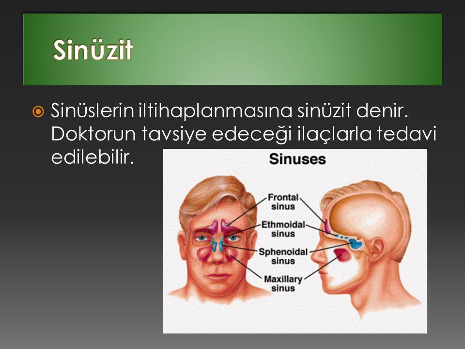 Sinüzit Sinüslerin iltihaplanmasına sinüzit denir.