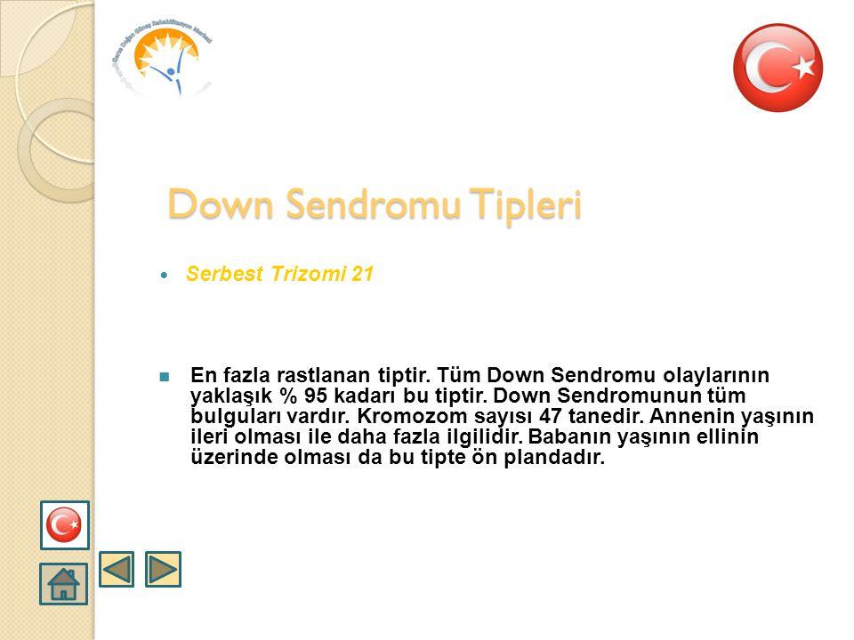 Down Sendromu Tipleri Serbest Trizomi 21