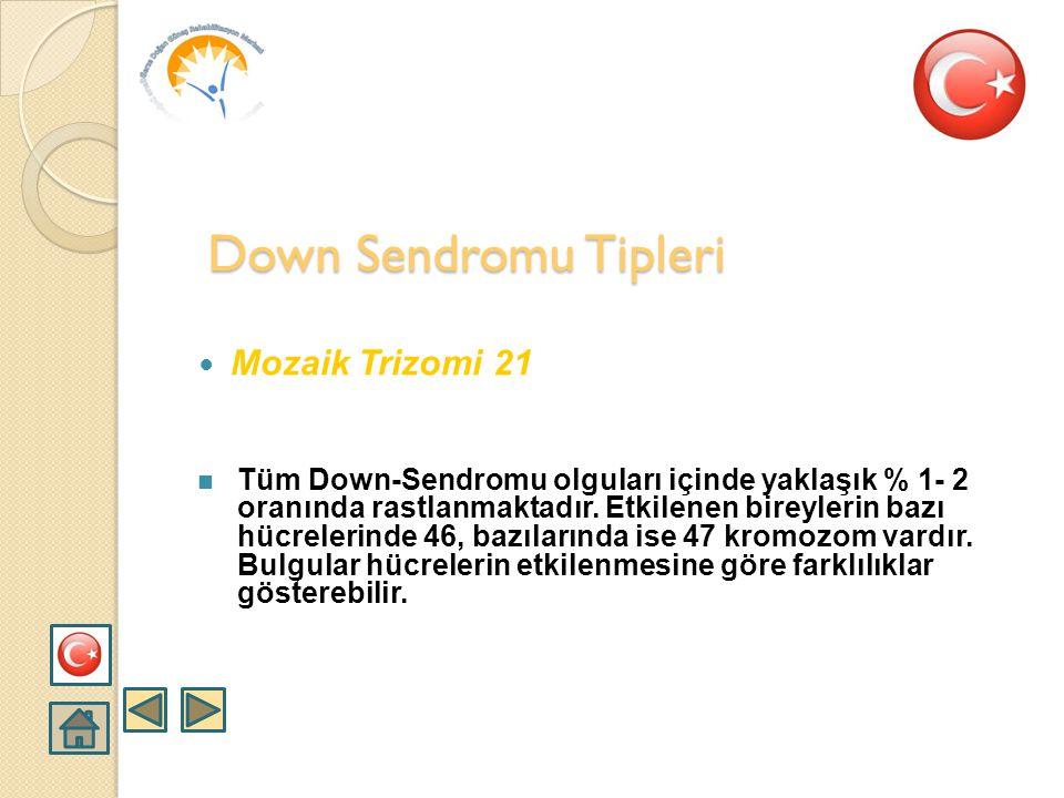 Down Sendromu Tipleri Mozaik Trizomi 21