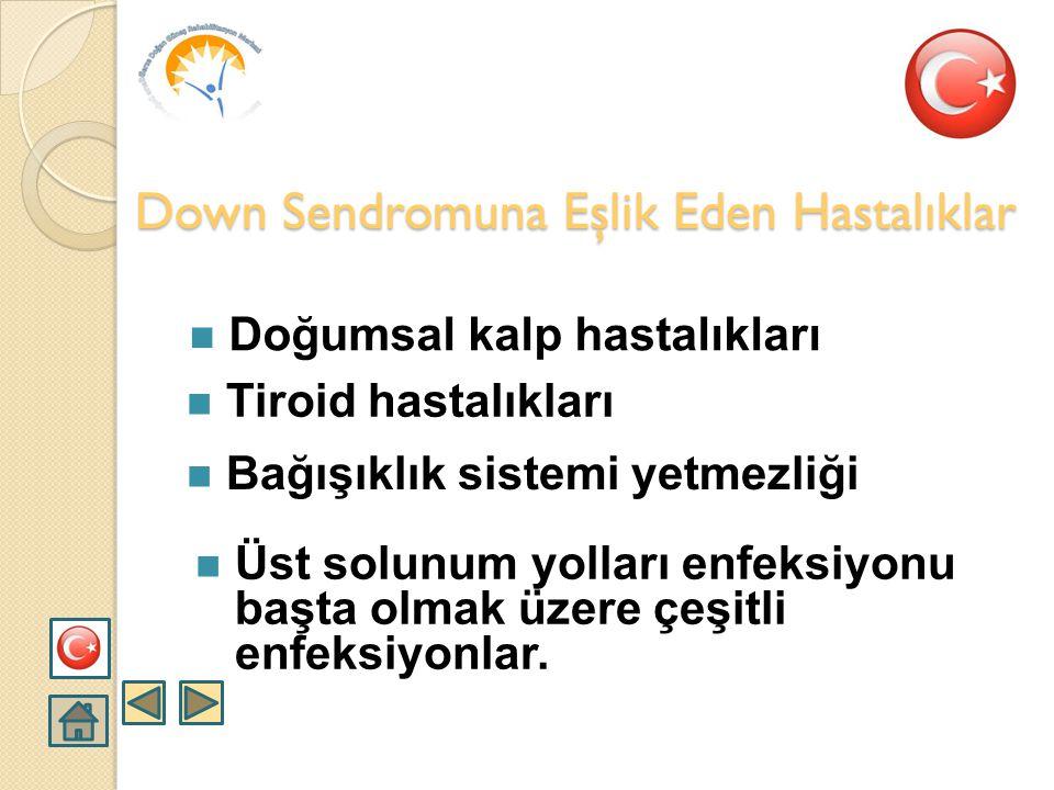 Down Sendromuna Eşlik Eden Hastalıklar
