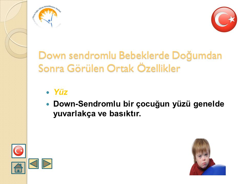 Down sendromlu Bebeklerde Doğumdan Sonra Görülen Ortak Özellikler