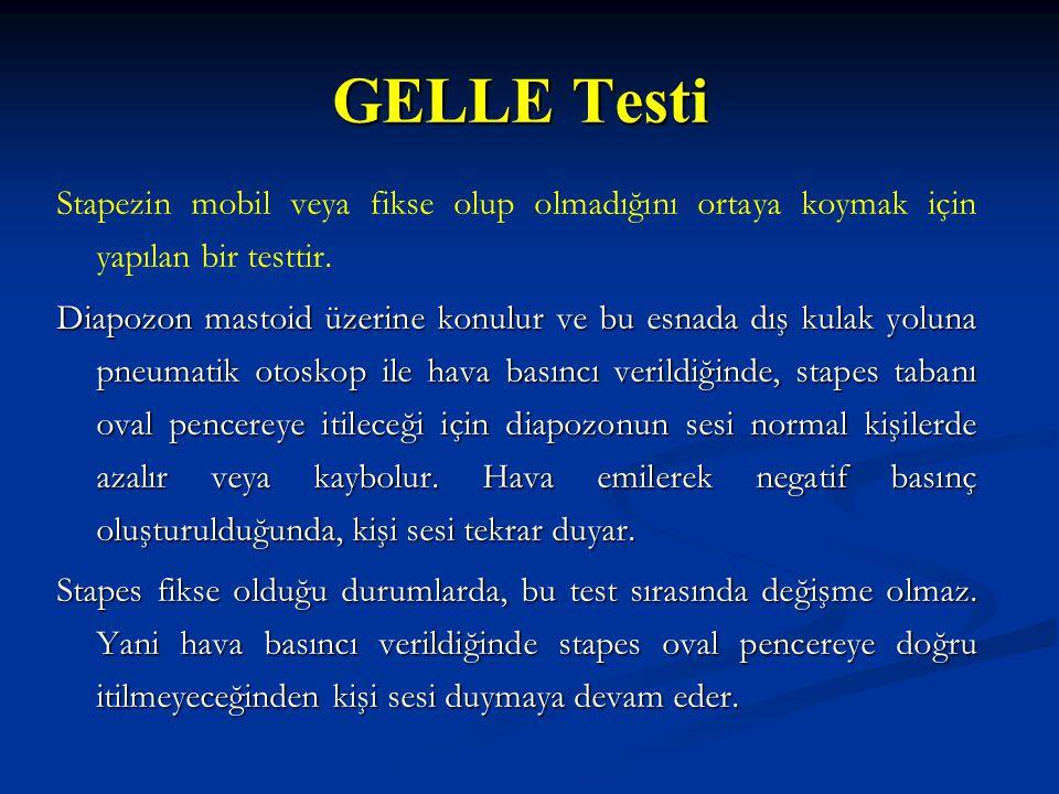 GELLE Testi Stapezin mobil veya fikse olup olmadığını ortaya koymak için yapılan bir testtir.