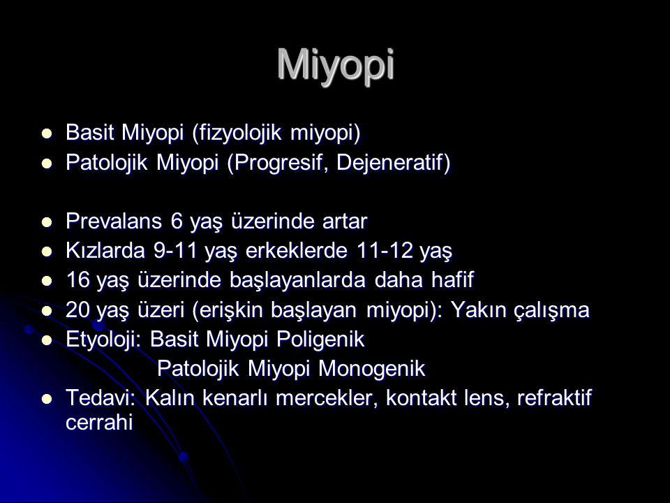 Miyopi Basit Miyopi (fizyolojik miyopi)