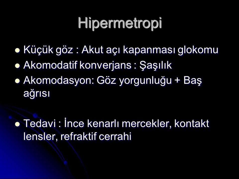 Hipermetropi Küçük göz : Akut açı kapanması glokomu
