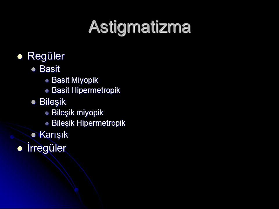 Astigmatizma Regüler İrregüler Basit Bileşik Karışık Basit Miyopik