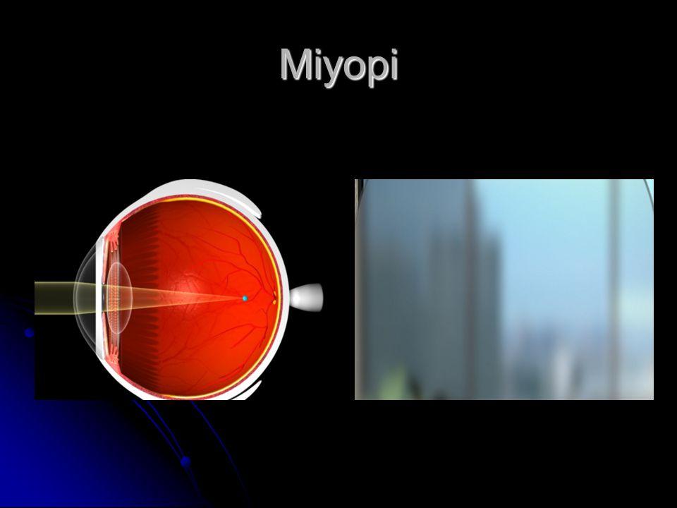 Miyopi