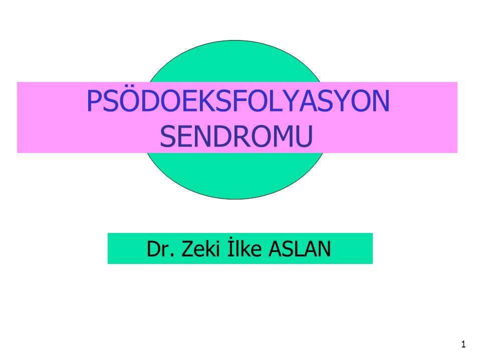 PSÖDOEKSFOLYASYON SENDROMU