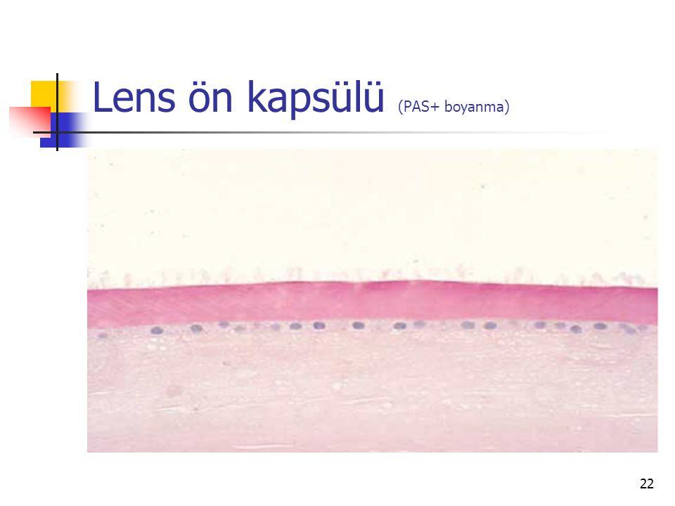 Lens ön kapsülü (PAS+ boyanma)