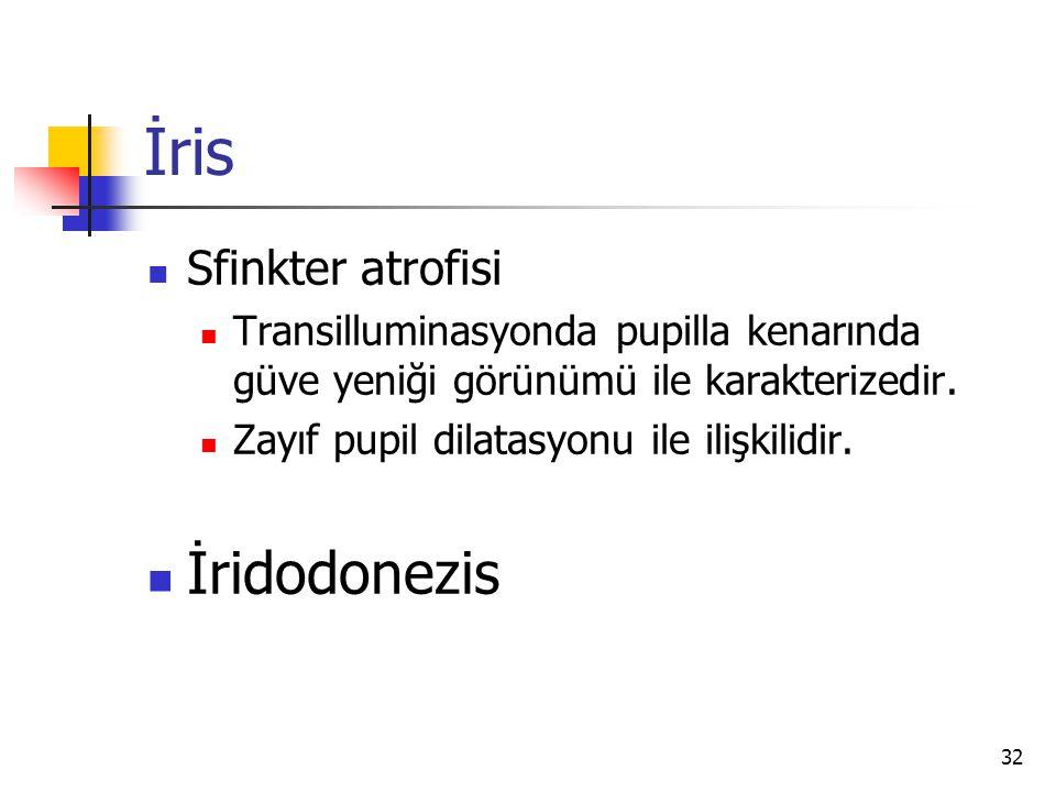 İris İridodonezis Sfinkter atrofisi