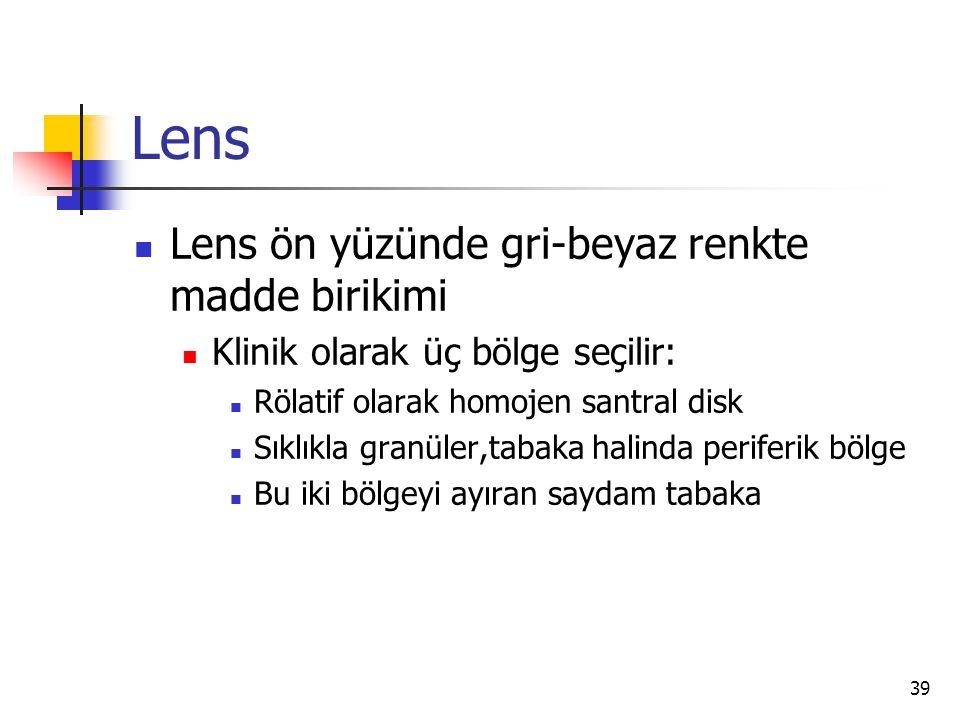 Lens Lens ön yüzünde gri-beyaz renkte madde birikimi