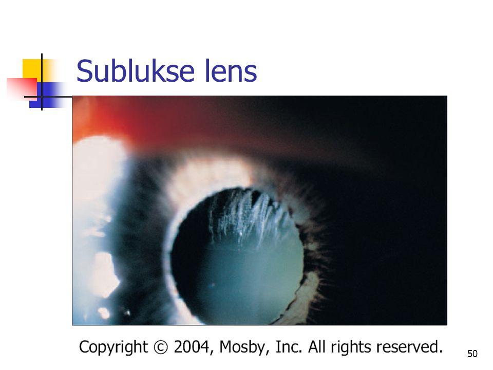 Sublukse lens