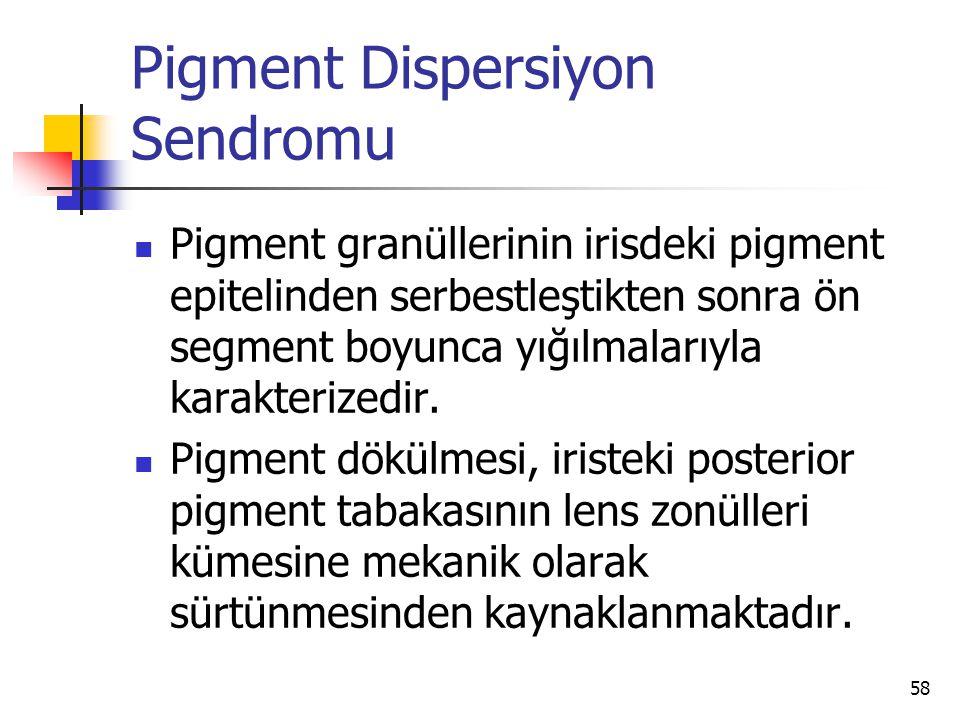Pigment Dispersiyon Sendromu