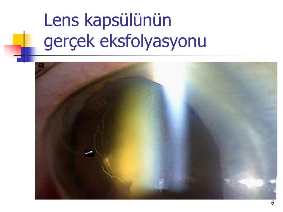Lens kapsülünün gerçek eksfolyasyonu