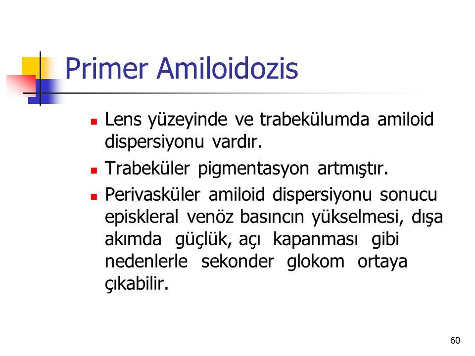 Primer Amiloidozis Lens yüzeyinde ve trabekülumda amiloid dispersiyonu vardır. Trabeküler pigmentasyon artmıştır.