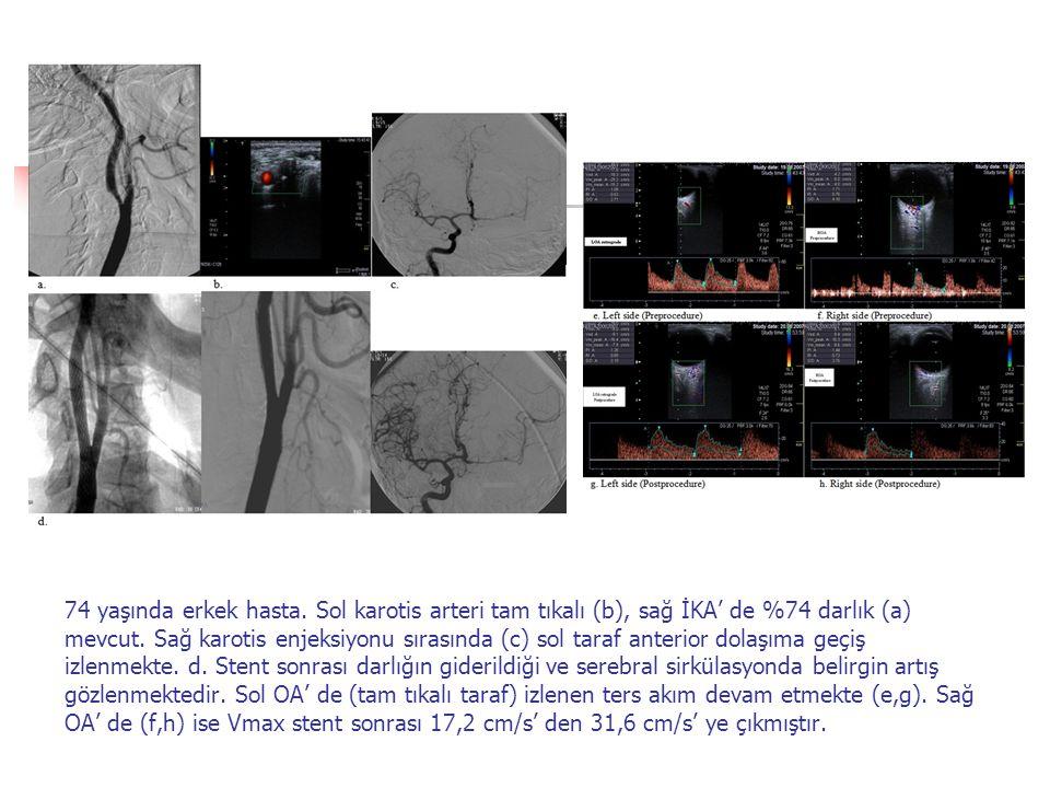 74 yaşında erkek hasta. Sol karotis arteri tam tıkalı (b), sağ İKA' de %74 darlık (a) mevcut.