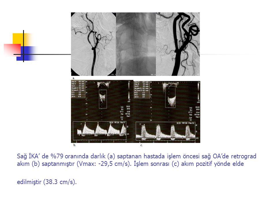 Sağ İKA' de %79 oranında darlık (a) saptanan hastada işlem öncesi sağ OA'de retrograd akım (b) saptanmıştır (Vmax: -29,5 cm/s).