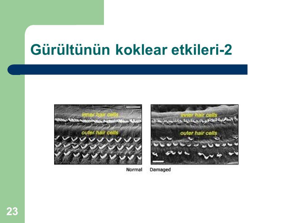 Gürültünün koklear etkileri-2