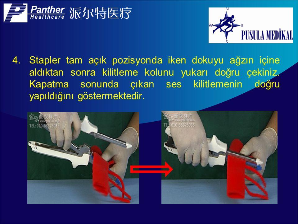 Stapler tam açık pozisyonda iken dokuyu ağzın içine aldıktan sonra kilitleme kolunu yukarı doğru çekiniz.