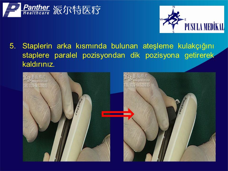 Staplerin arka kısmında bulunan ateşleme kulakçığını staplere paralel pozisyondan dik pozisyona getirerek kaldırınız.