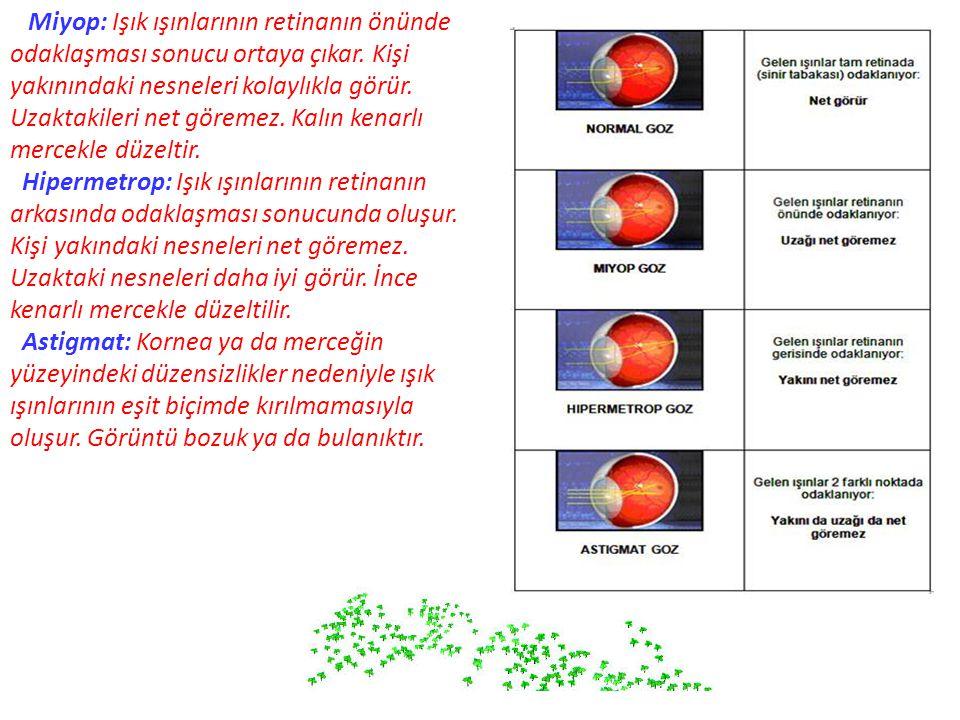 Miyop: Işık ışınlarının retinanın önünde odaklaşması sonucu ortaya çıkar. Kişi