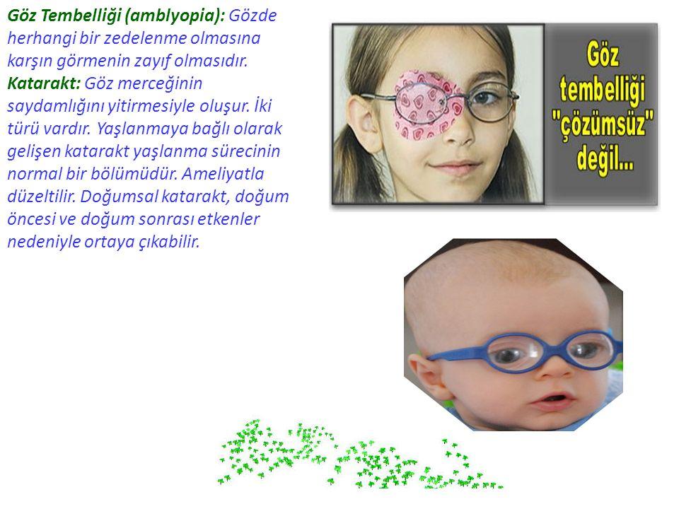 Göz Tembelliği (amblyopia): Gözde herhangi bir zedelenme olmasına karşın görmenin zayıf olmasıdır.