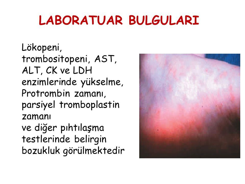 LABORATUAR BULGULARI Lökopeni, trombositopeni, AST, ALT, CK ve LDH