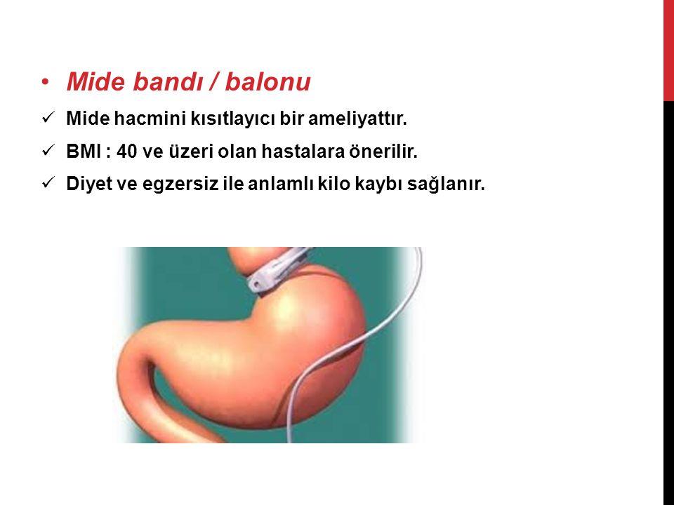 Mide bandı / balonu Mide hacmini kısıtlayıcı bir ameliyattır.