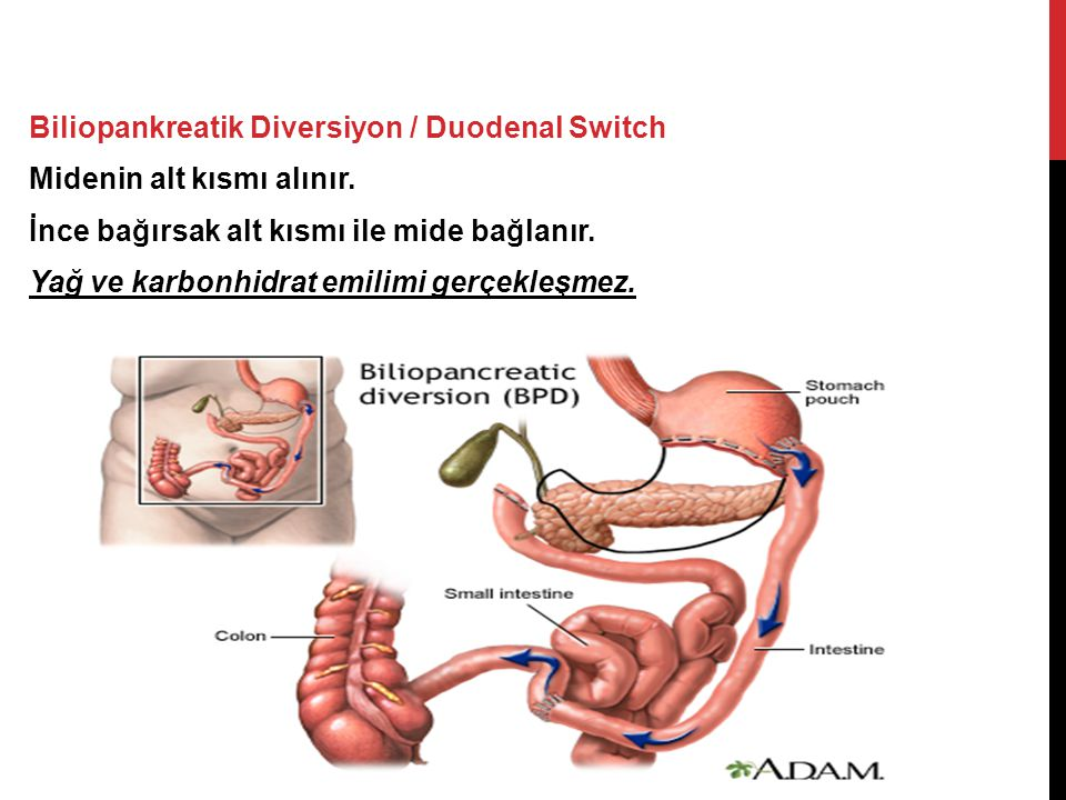Biliopankreatik Diversiyon / Duodenal Switch Midenin alt kısmı alınır
