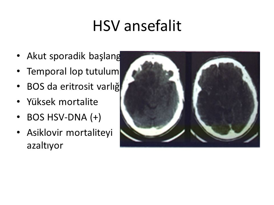 HSV ansefalit Akut sporadik başlangıç Temporal lop tutulumu