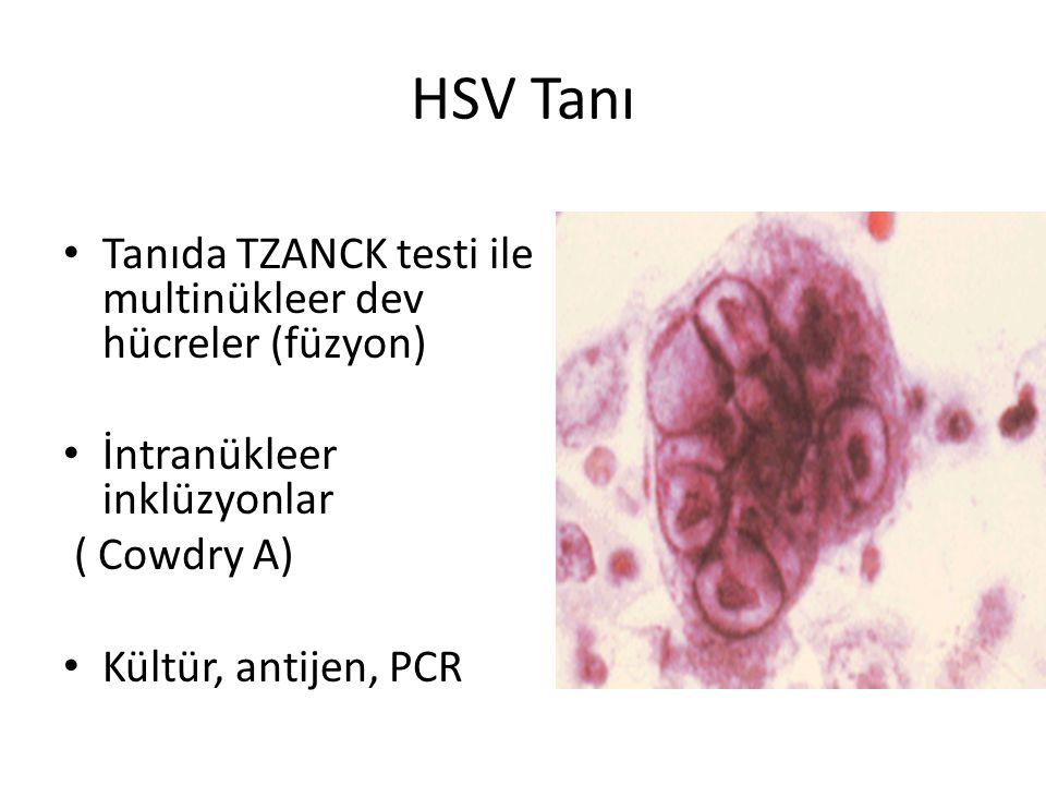 HSV Tanı Tanıda TZANCK testi ile multinükleer dev hücreler (füzyon)