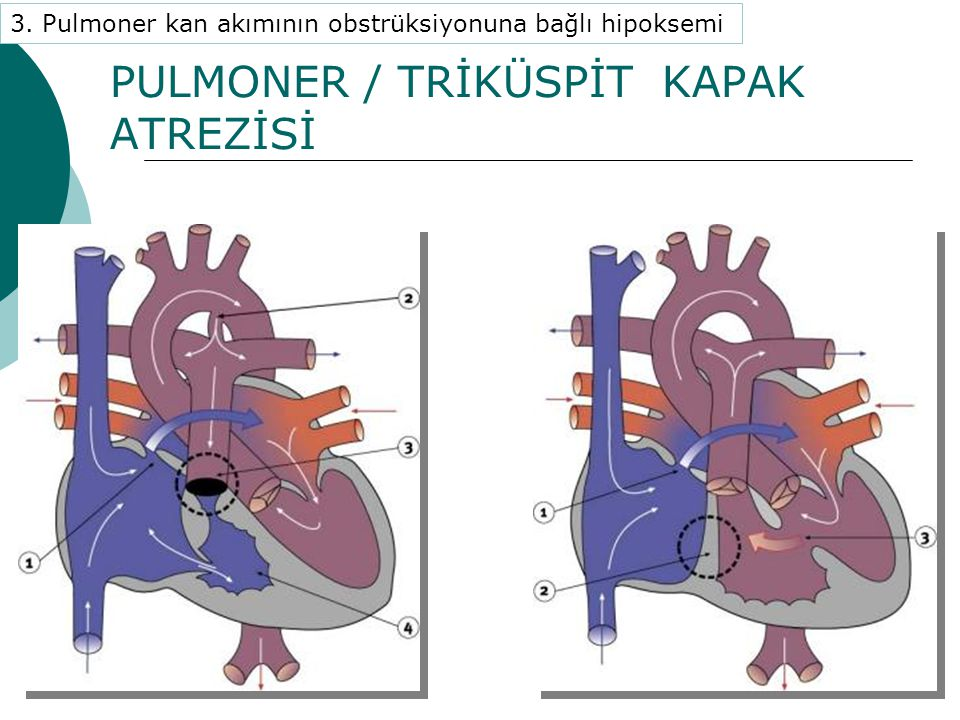 PULMONER / TRİKÜSPİT KAPAK ATREZİSİ