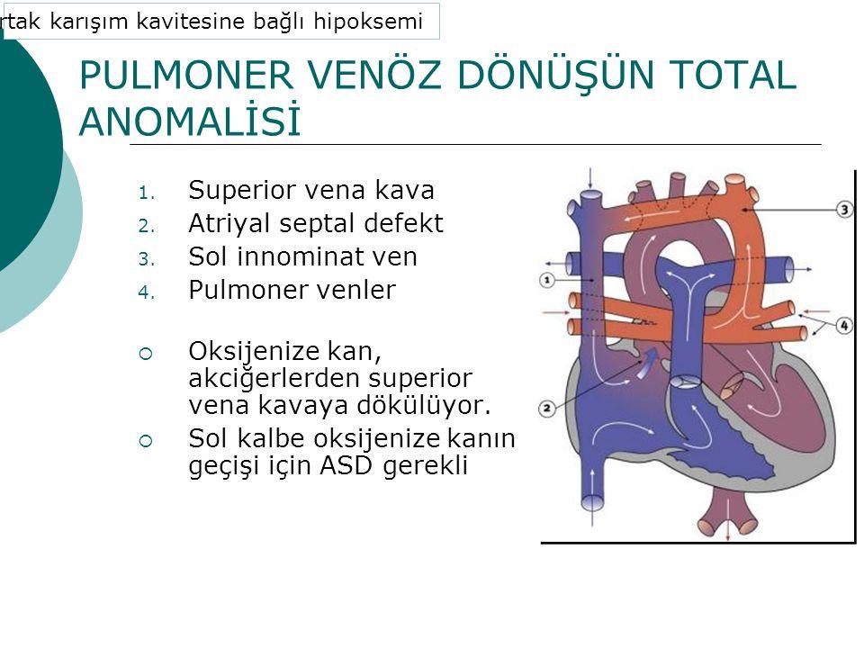 PULMONER VENÖZ DÖNÜŞÜN TOTAL ANOMALİSİ