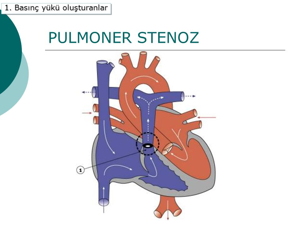 PULMONER STENOZ 1. Basınç yükü oluşturanlar B) Pulmoner Stenoz Anatomi