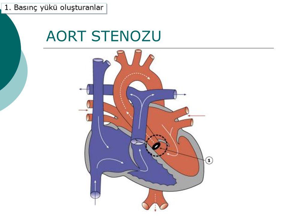 AORT STENOZU 1. Basınç yükü oluşturanlar C) Aort Stenozu