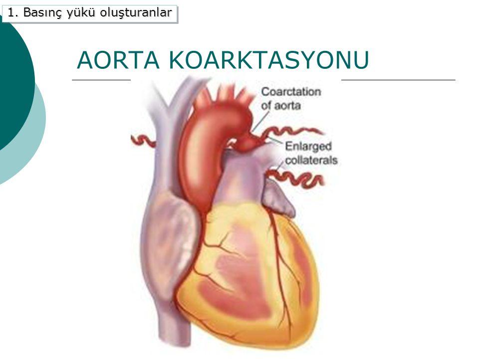 AORTA KOARKTASYONU 1. Basınç yükü oluşturanlar A) Aort koarktasyonu