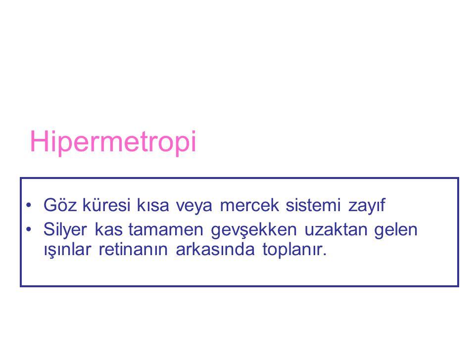 Hipermetropi Göz küresi kısa veya mercek sistemi zayıf