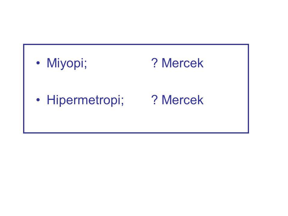 Miyopi; Mercek Hipermetropi; Mercek
