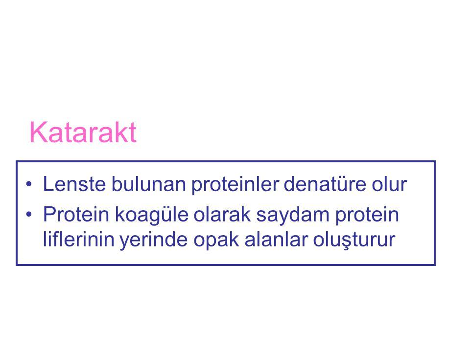 Katarakt Lenste bulunan proteinler denatüre olur