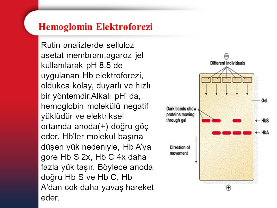 Hemoglomin Elektroforezi