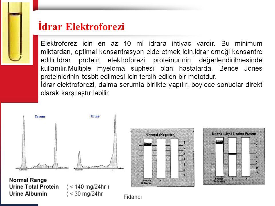 İdrar Elektroforezi
