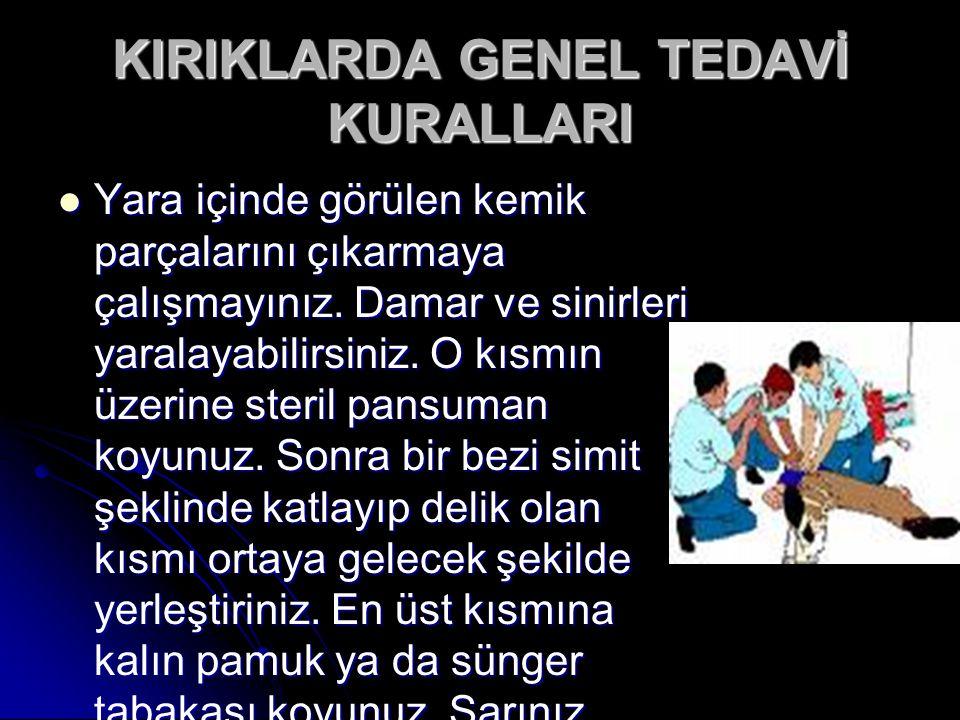 KIRIKLARDA GENEL TEDAVİ KURALLARI