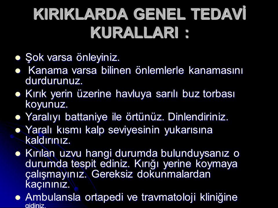 KIRIKLARDA GENEL TEDAVİ KURALLARI :