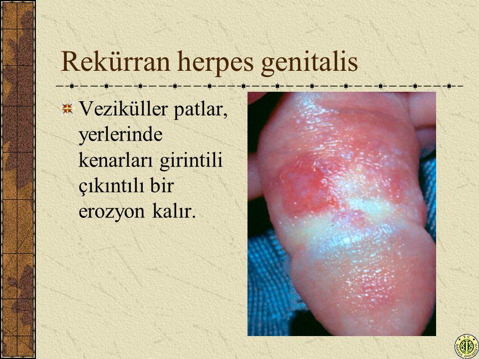 Rekürran herpes genitalis