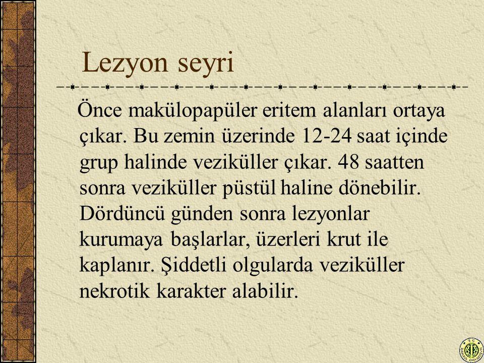Lezyon seyri